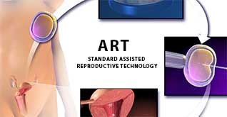 Standard Assisted reproductive technology ART